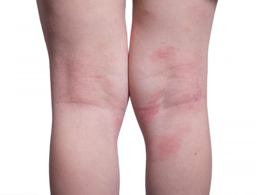 Eczema on the back of legs
