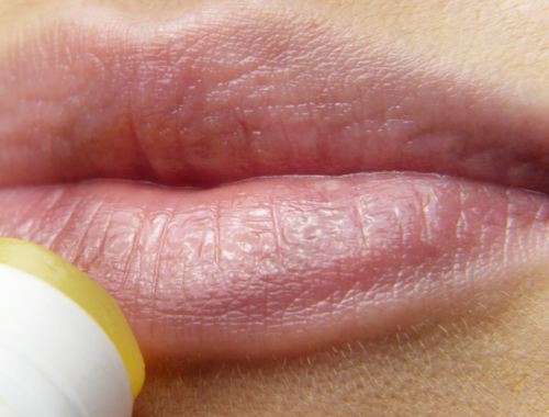 Dry Skin Around the Mouth: Causes & Best Treatments - The Cosmetics Cop