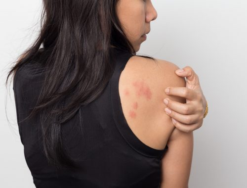 woman scratching psoriasis rash on back