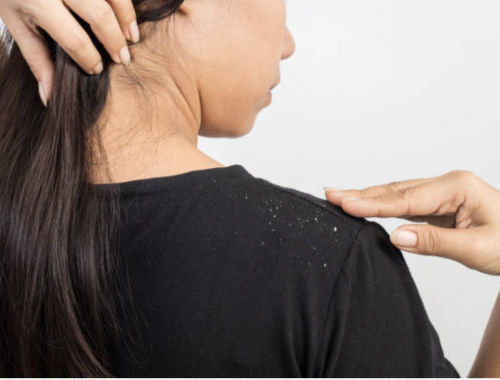 woman brushing dandruff off shoulder
