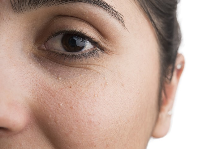 Milia Under the Eyes: Causes & Solutions! - The Cosmetics Cop